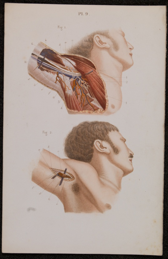 Claude Bernard and Charles Huette. A text book of operative surgery and surgical anatomy. Translated from the French and edited by Arthur Trehern Norton. London,1878.